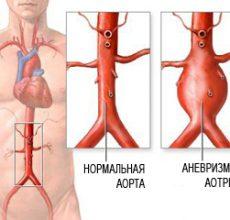 Диагностика и лечение варикозного расширения вен пищевода