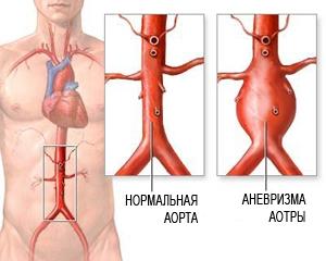 Сравнение больной и здоровой аорты