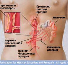 Чем опасен тромбоз кишечника и как его лечить?
