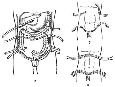 Дренирование брюшной полости – особенности проведения