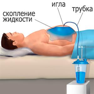 Выкачивание жидкости