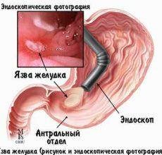 Почему возникает и как лечится язва желудка?