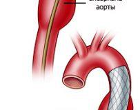 Что такое аневризма аорты брюшной полости?