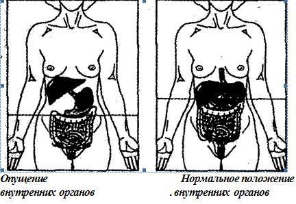 Опущение органов