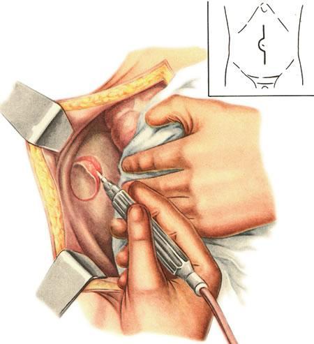 Что такое дренаж в медицине в хирургии
