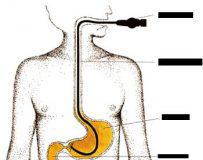 Причины воспаления пищевода