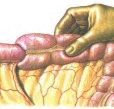 Лечение и проведение операции при некрозе кишечника