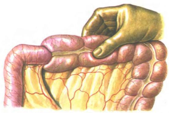 Больной орган