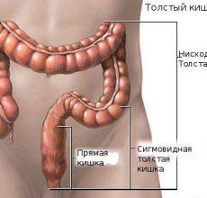 Как проходит лечение воспаления кишечника?