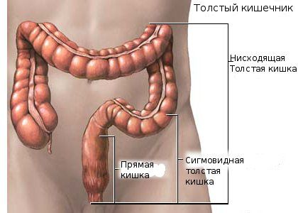 Воспаление толстого кишечника: симптомы и лечение