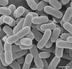 Роль бифидобактерий для кишечника в организме