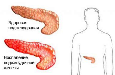 Симптомы заболеваний поджелудочной железы и их лечение: медикаментами и народными средствами