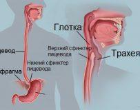 Причины и лечение дисфагии пищевода