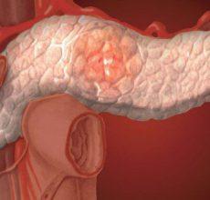 Что вызывает реактивные изменения поджелудочной железы?