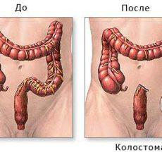 Для чего и как проводится резекция кишечника?