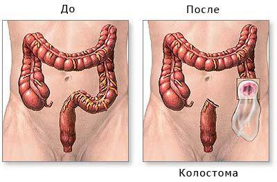 Резекция кишечника: диета, последствия