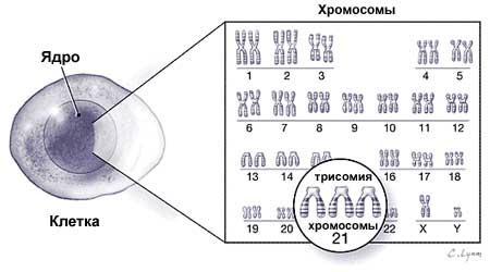 Лишняя хромосома