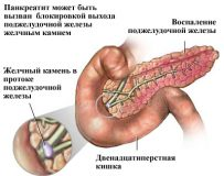 Профилактика и лечение псевдотуморозного панкреатита
