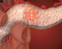 Методика лечения реактивного панкреатита