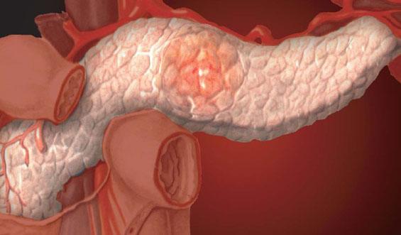 Реактивный панкреатит у ребенка: симптомы и лечение