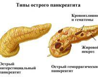 Способы лечения острого панкреатита