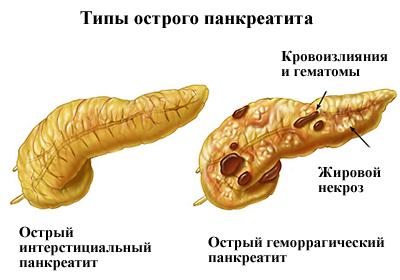 Типы острого воспаления