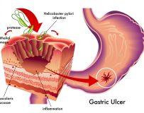 Как проходит лечение гиперацидного гастрита?