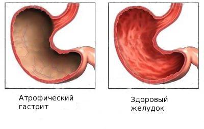 Здоровый и больной желудок