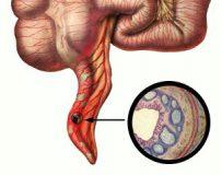 Почему флегмонозный аппендицит так опасен?