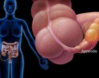 Особенности протекания хронического аппендицита