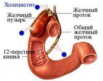 Методика лечения хронического холецистита