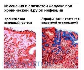 Боли в грудной клетке невралгия лечение