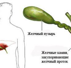 Симптомы и лечение калькулезного холецистита