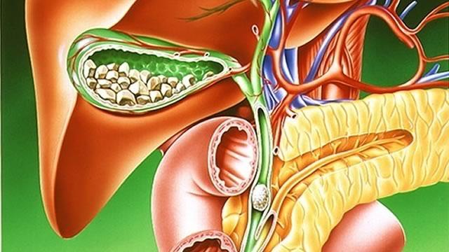 Хронический холецистит: симптомы и лечение болезни