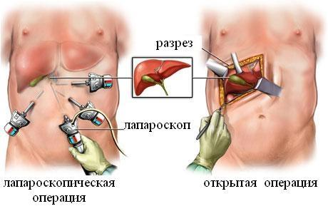 Лапароскопия и открытая операция