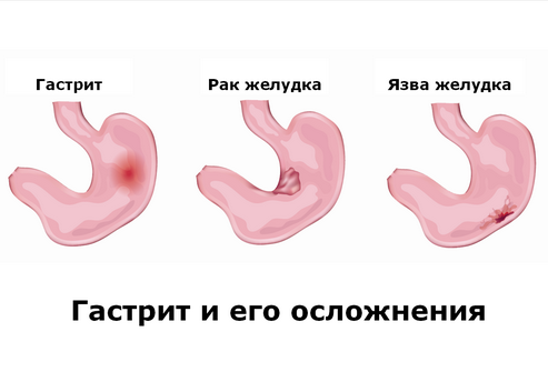 Осложнения гастрита