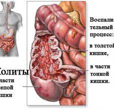 Как лечить колит кишечника?