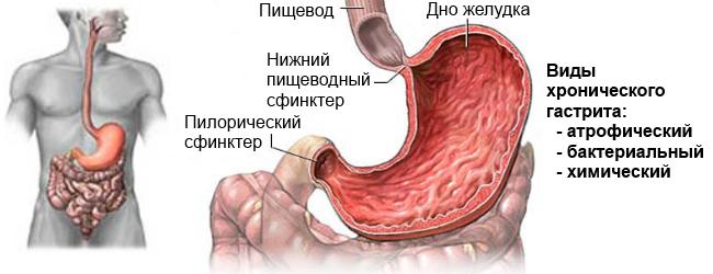 Антрум гастрит симптомы