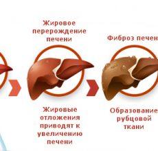 Что означает диагноз — декомпенсация цирроза печени?