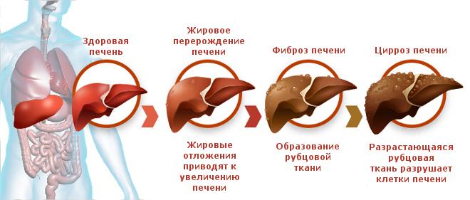 Цирроз и другие болезни