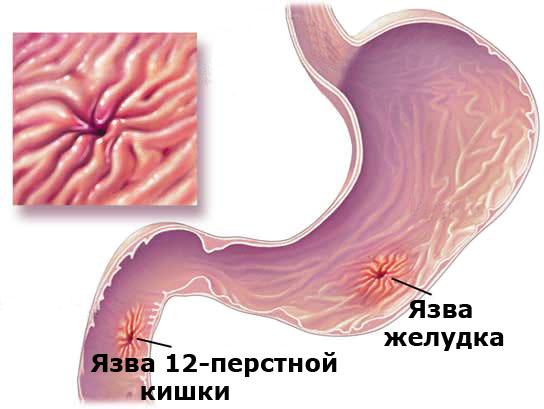 Эрозия двенадцатиперстной кишки: симптомы и лечение болезни