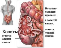 Проявления спастического колита и методы его лечения