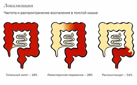Псевдомембранозный колит: симптомы, лечение, особенности болезни