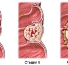 Лечение и прогноз при аденокарциноме прямой кишки