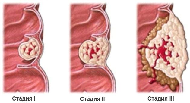 Стадии развития аденокарциномы