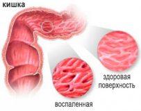 Каким должно быть лечение катарального колита кишечника?