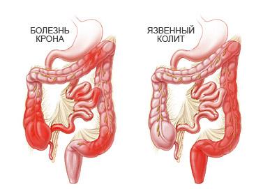 Язвенный колит: лечение и симптомы болезни