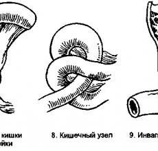 Признаки и лечение заворота кишок