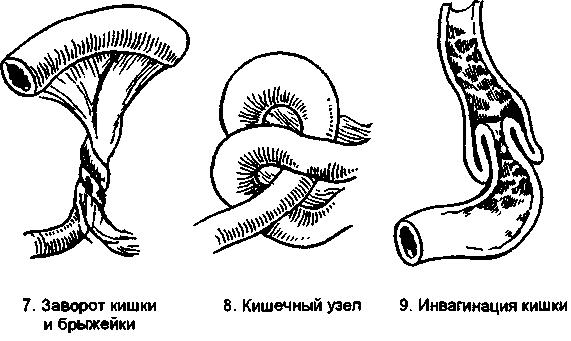 Виды заворотов