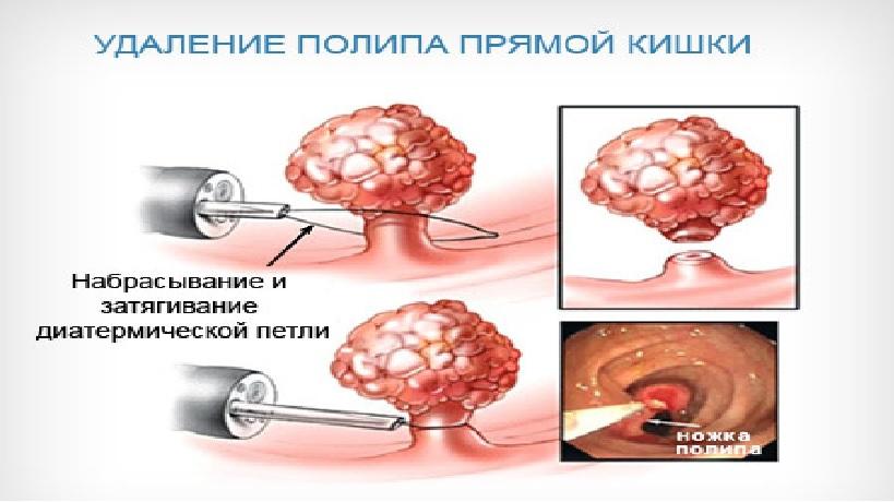 операция по удалению спаек кишечника
